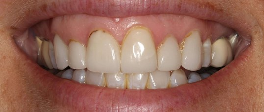 Beautiful Smile Makeover Before