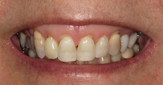 Gorgeous Smile Makeover Before
