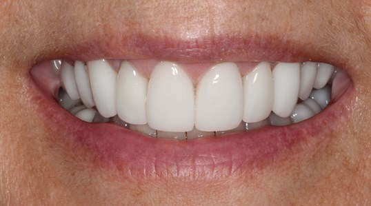 Gorgeous Smile Makeover After