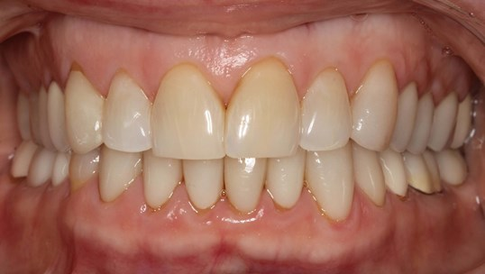 Porcelain Veneers for Wear Before