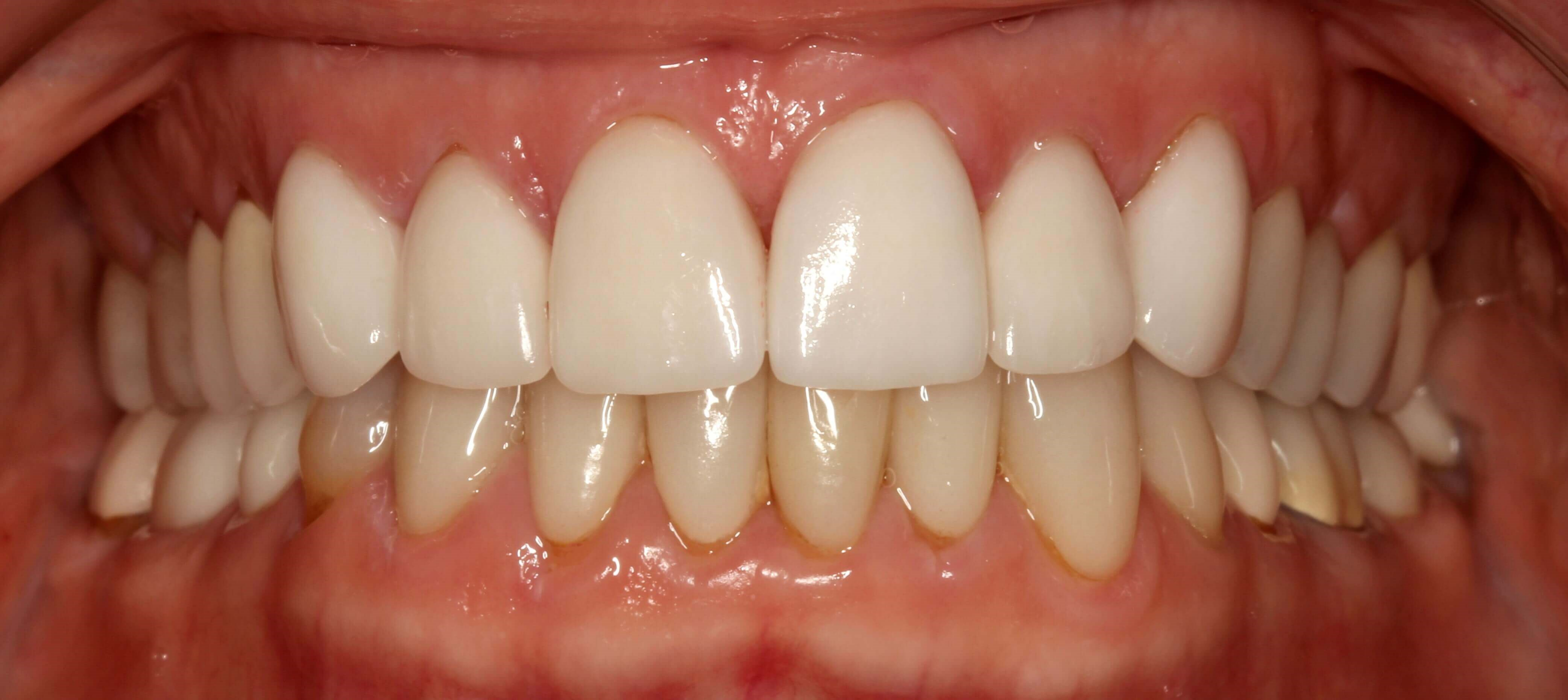 Porcelain Veneers for Wear After