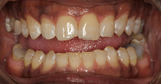 Inspiring Smile Makeover Before
