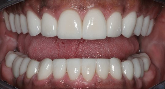 Inspiring Smile Makeover After