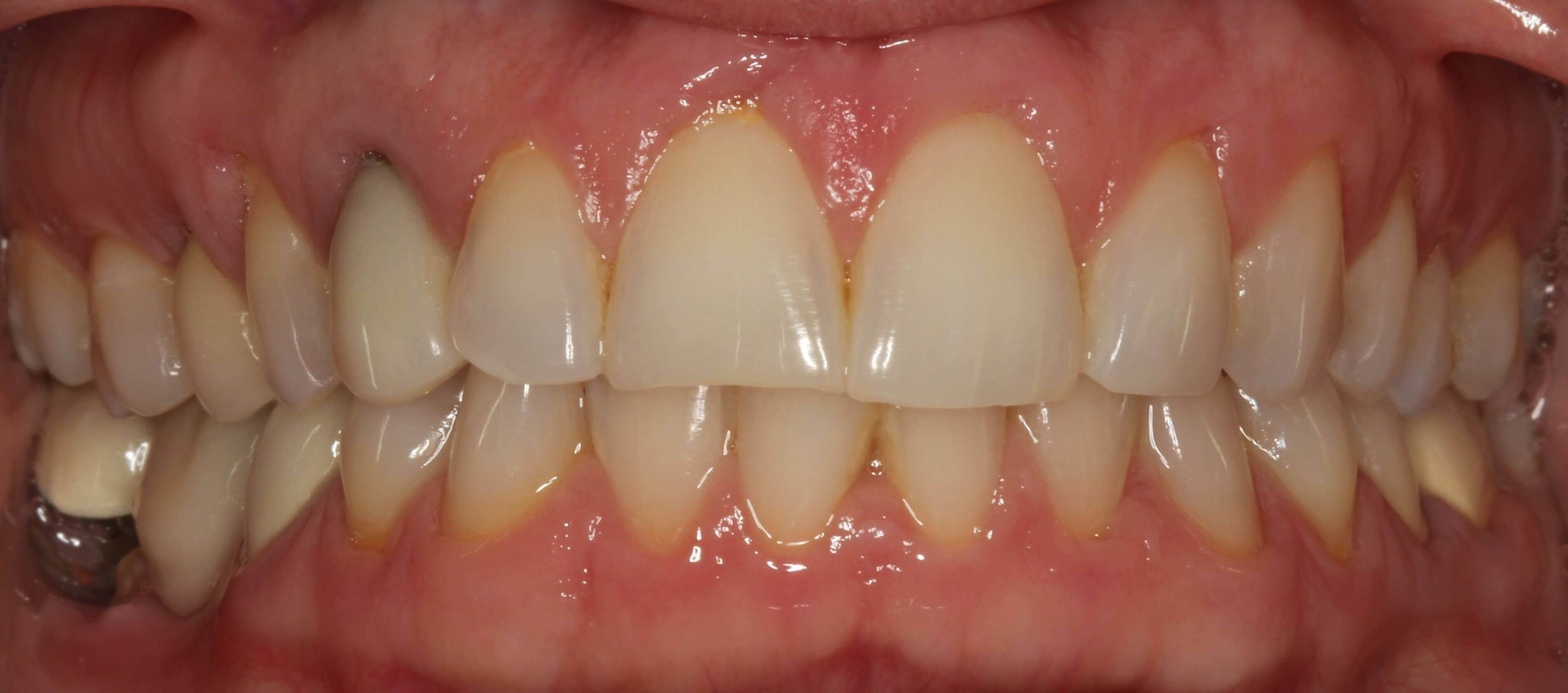 Amazing Smile Makeover Before