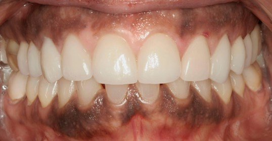 Gummy Smile Makeover After