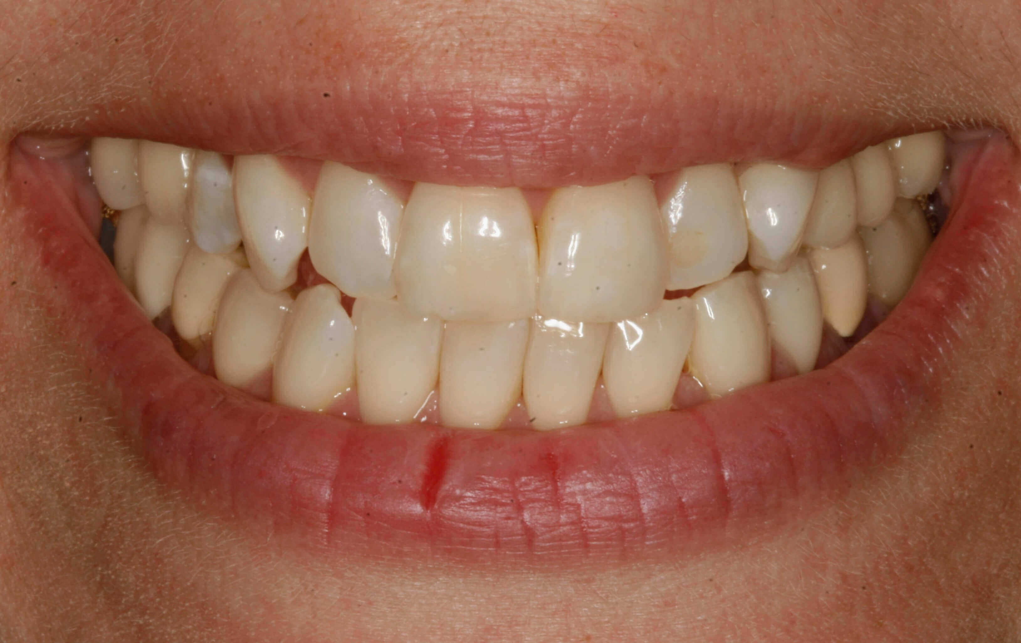 Smile Restoration at SmilesNY Before