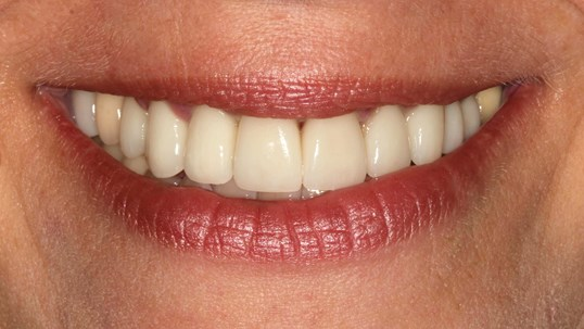 Smile Restoration at SmilesNY After