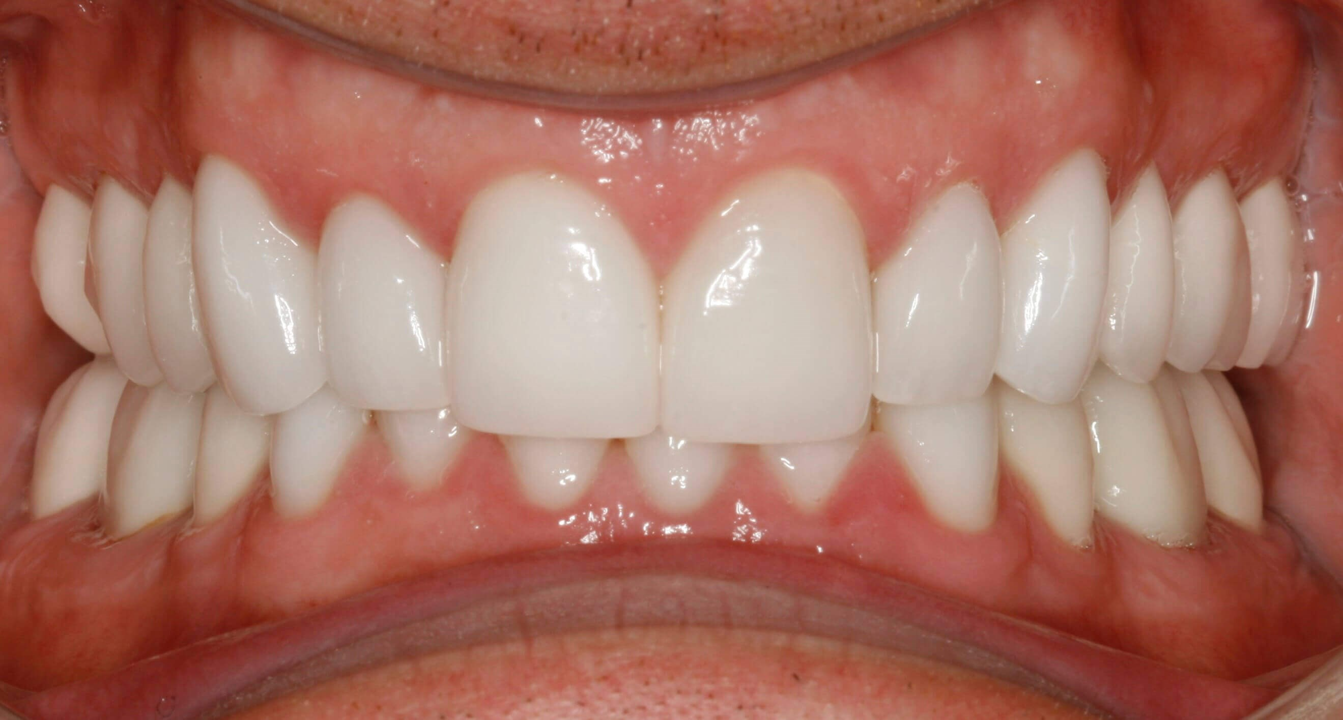 Before and After Crown Lengthening & Dental Crowns & Smile ...