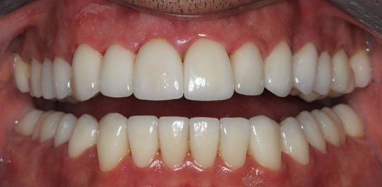 Amazing Smile Makeover NYC After