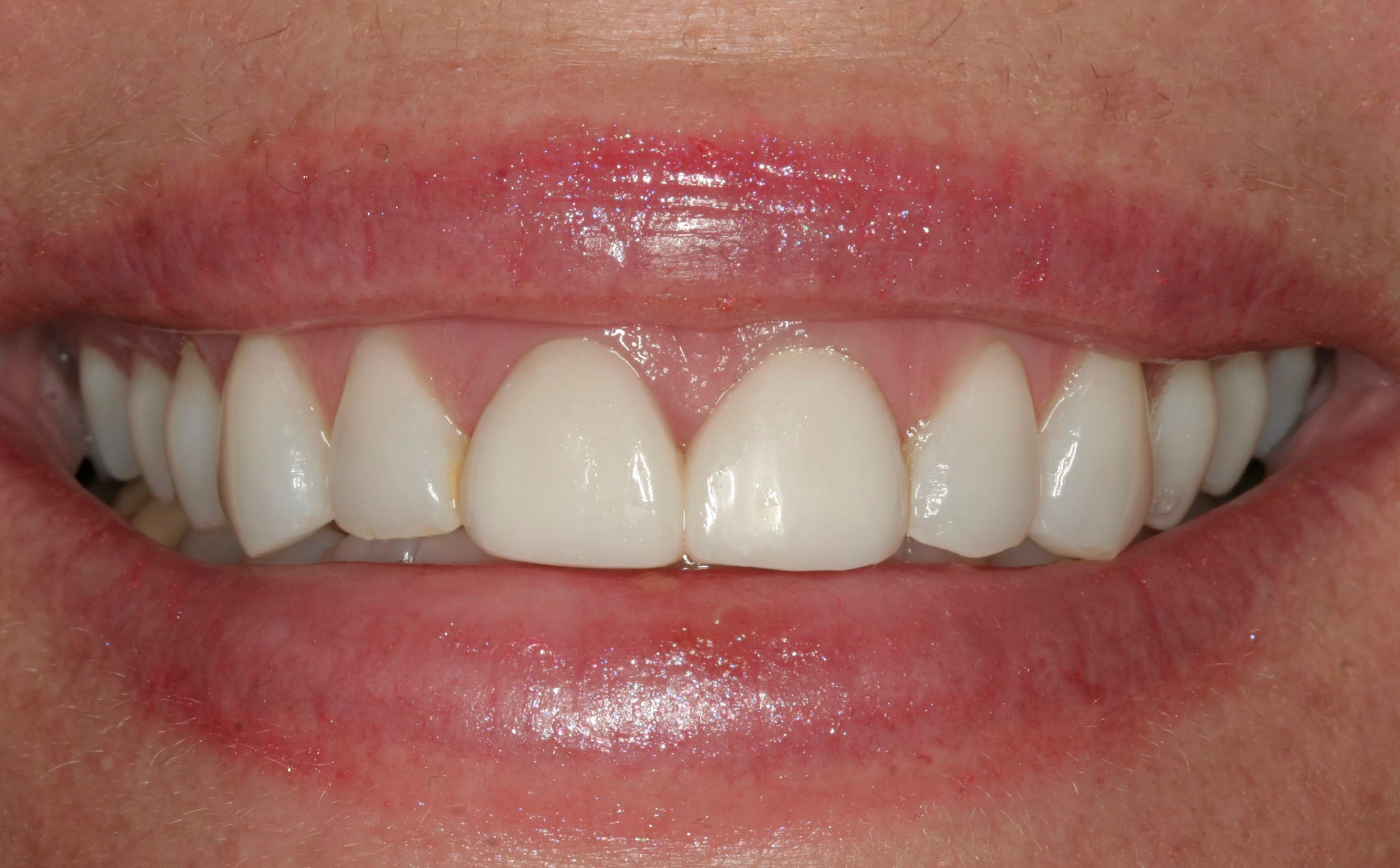 Cosmetic Dentistry in New York Before