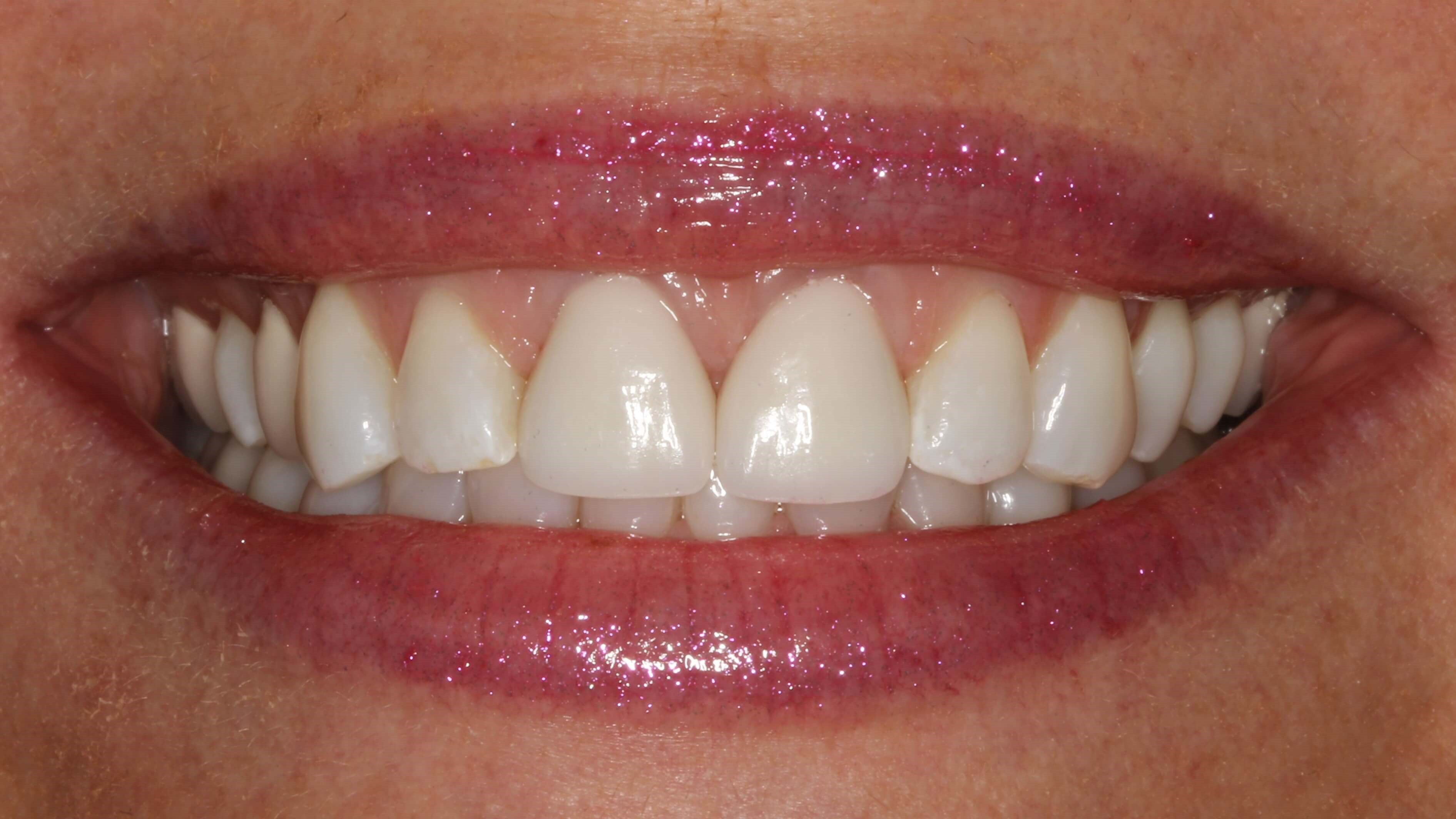 Cosmetic Dentistry in New York After