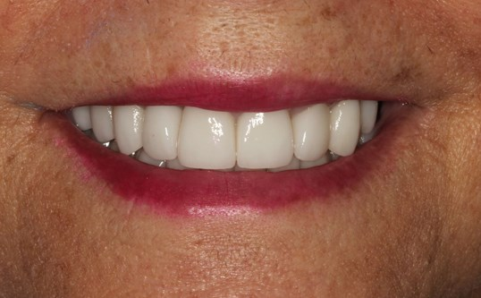 New York City Smile Makeover After