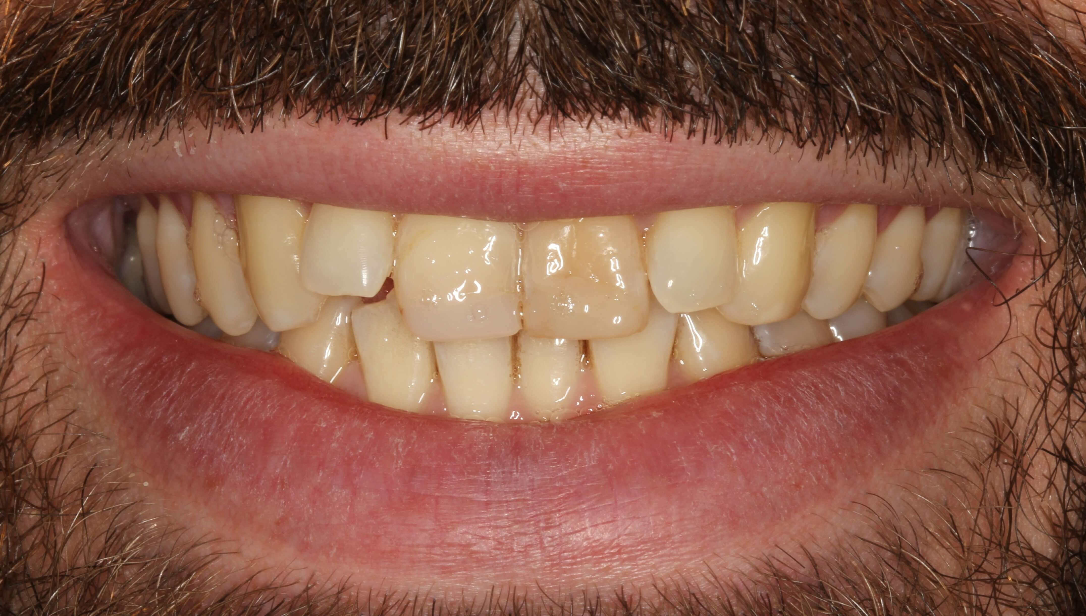 New York City Cosmetic Dentist Before
