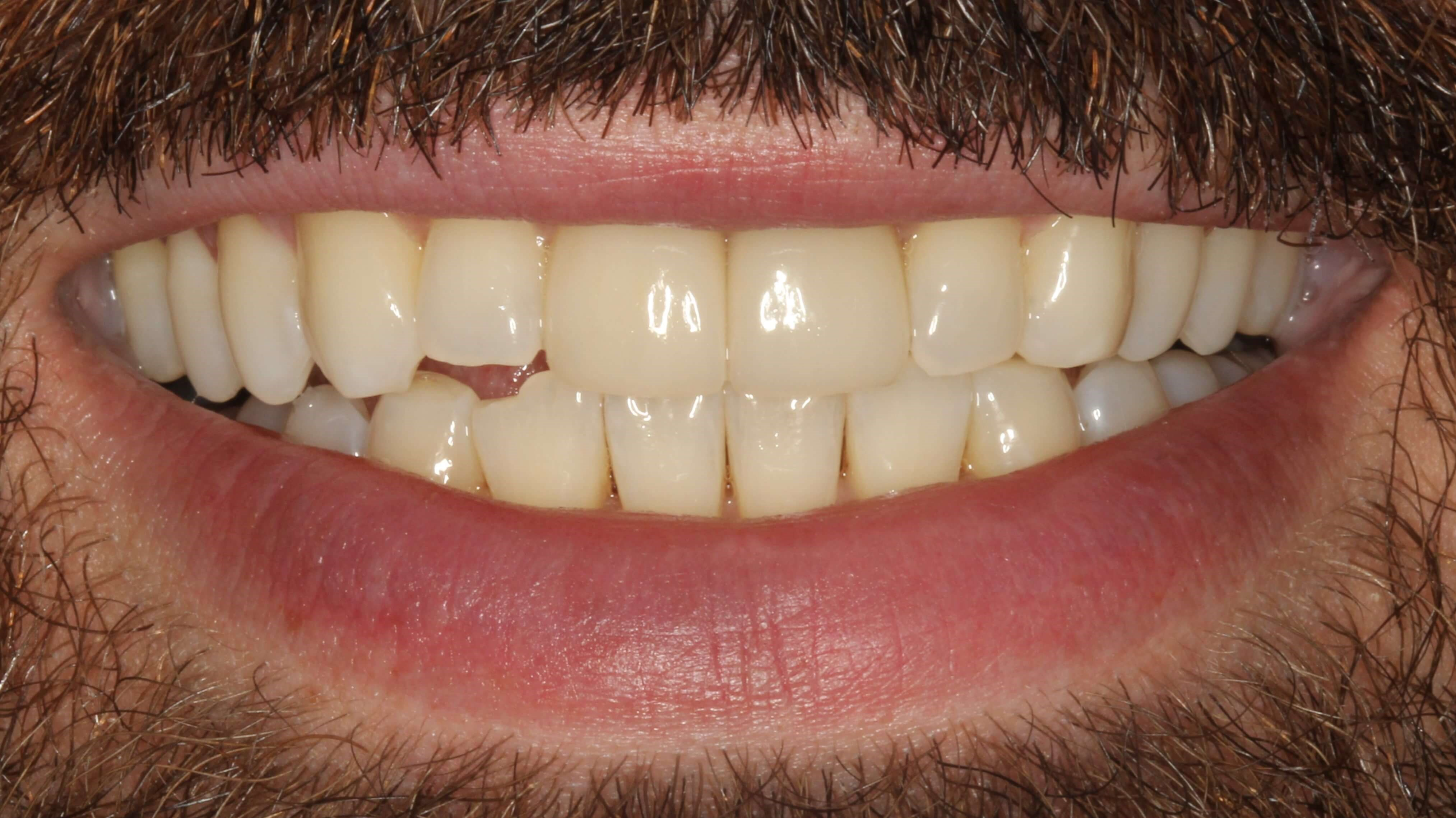 New York City Cosmetic Dentist After